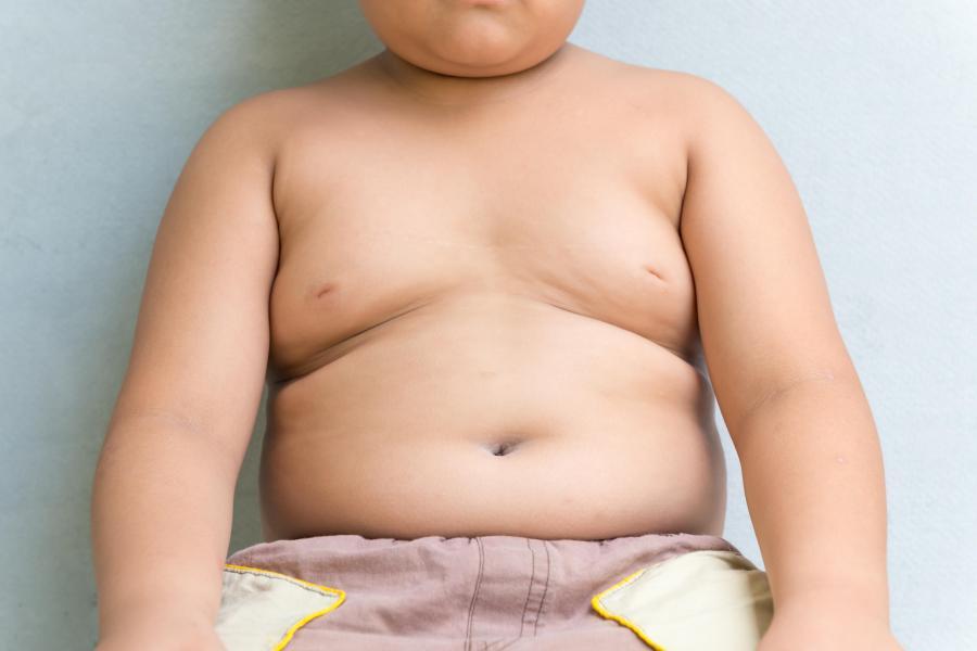 Prevención de la obesidad infantil